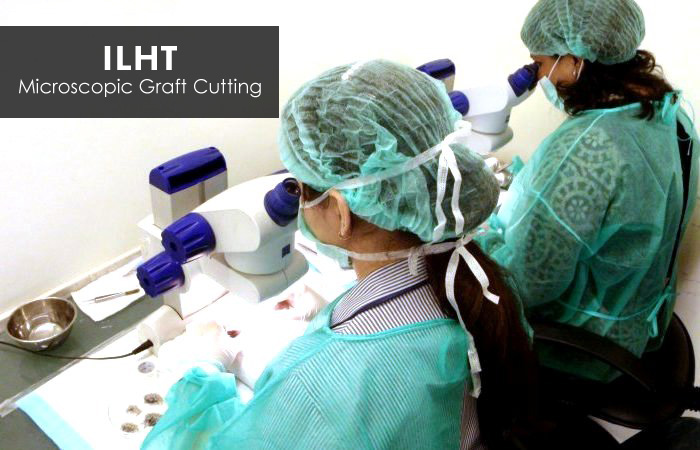 Microscopic Graft Cutting