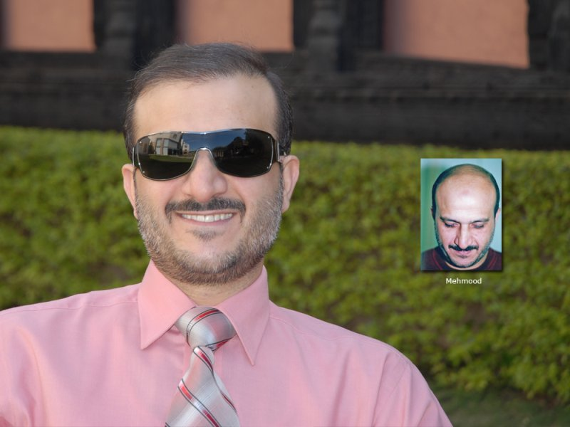 Hair Transplant Results:Mehmood