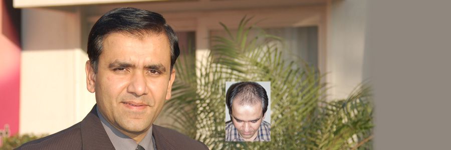 hair-transplant-results-hamid