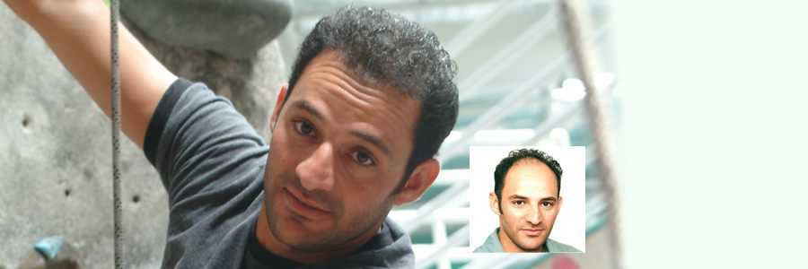 hair-transplant-results-usman
